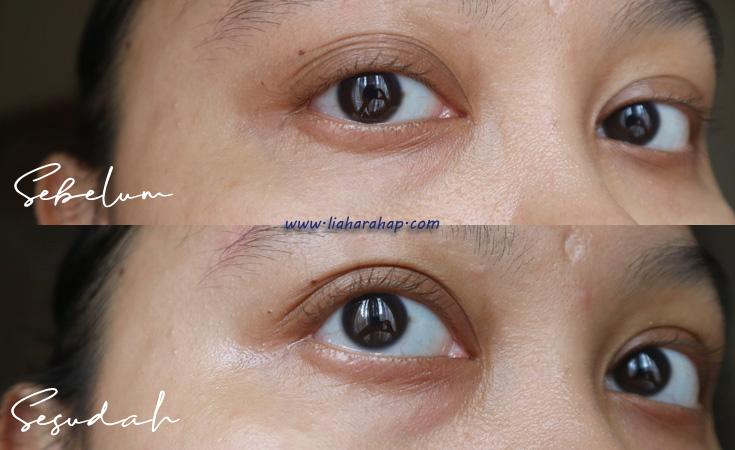 hasil pakai eye patch
